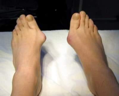 Медики рассказали, как правильно лечить «косточку» на ногах