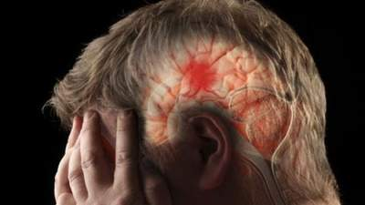 Медики опровергли самые популярные мифы об инсульте