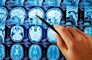 Ученые создали вакцину от рака мозга