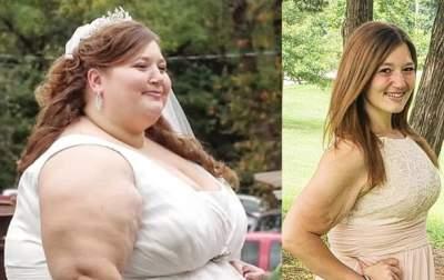Американка горько пожалела, похудев на 140 килограмм