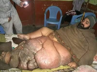 Пакистанец умоляет врачей отрезать ему ногу весом 150 кг