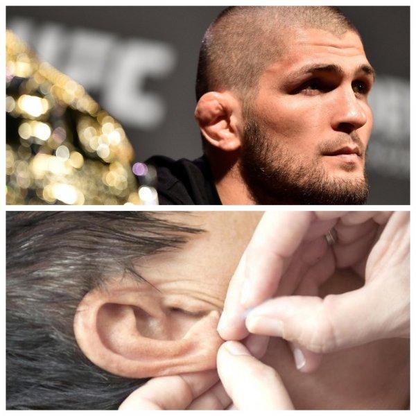 Хабиб стайл: В Махачкале поклонникам UFC ломают уши за деньги